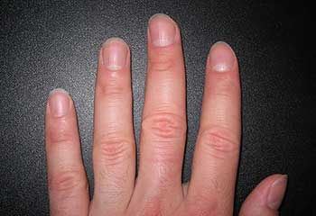 Clean-fingers