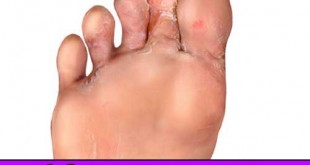 10 Natural Home Remedies for Athlete's Foot