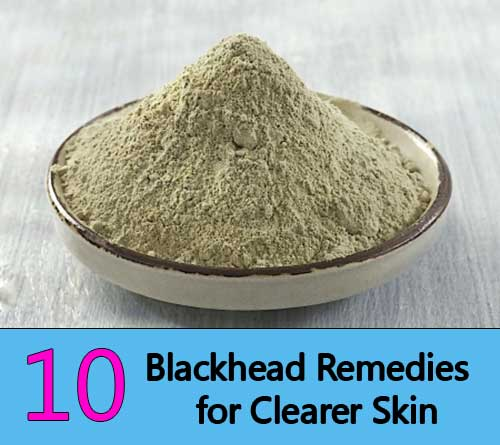 Blackhead Remedies for Clearer Skin