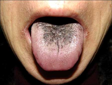 Does your tongue have black spots or is a little hairy?