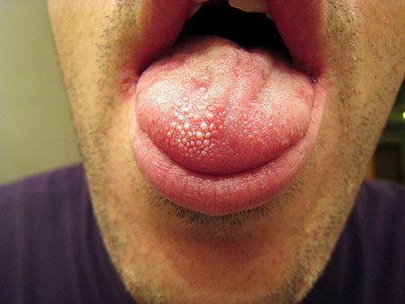 Is your tongue white or dotted with white spots