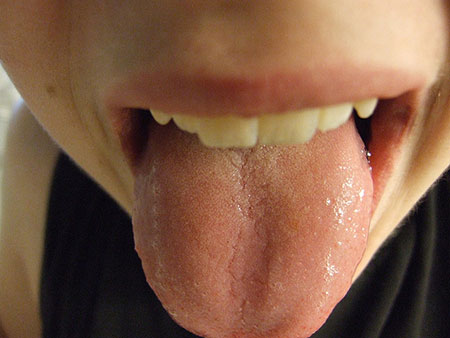 Is your tongue completely smooth and a little pale ?