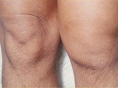 Ease Arthritis