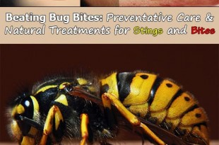 Beating Bug Bites: Preventative Care and Natural Treatments for Stings and Bites