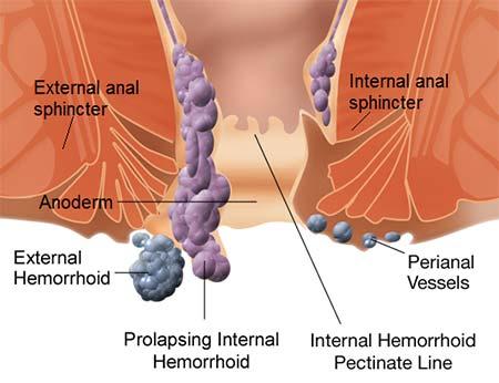 Help For Hemorrhoids