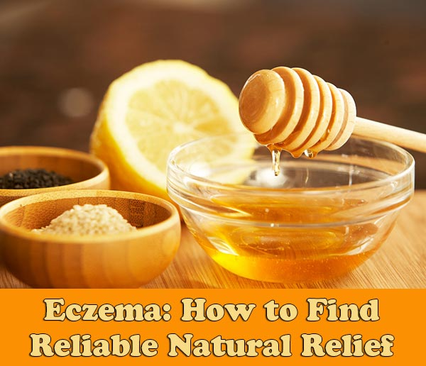 Eczema: How to Find Reliable Natural Relief