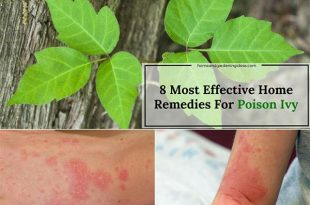 Poison Ivy Home Remedies: 8 Most Effective Remedies For Poison Ivy