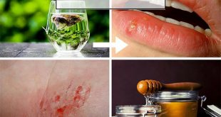 14 Bizarre and Effective Home Remedies