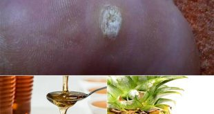 8 Natural Home Remedies To Get Rid of Warts