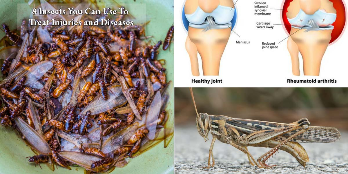 8 Insects You Can Use to Treat Injuries and Diseases
