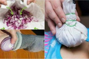 11 Crazy Home Remedies Using Onions That Really Work
