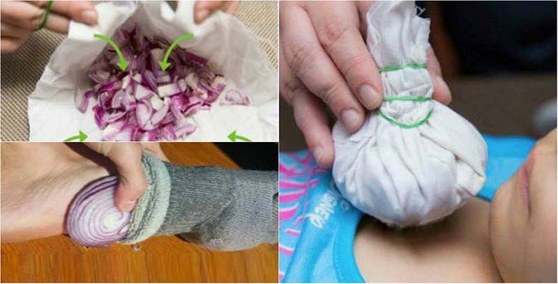 11 CrazyHome Remedies Using Onions That Really Work