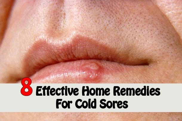 8 effective home remedies for cold sores