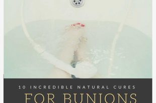 10 Incredible Natural Cures for Bunions
