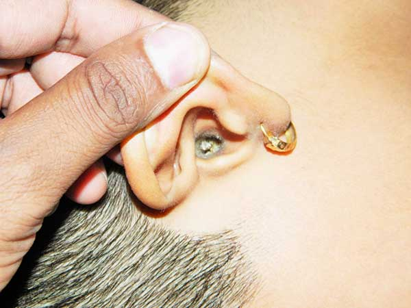 What Can I Do For An Ear Infection At Home