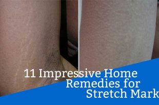 11 Impressive Home Remedies for Stretch Marks