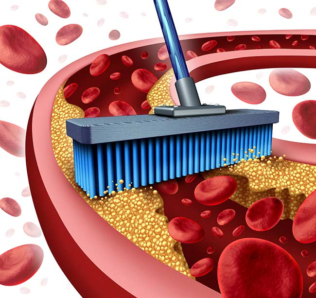 13 Foods to Eat to Reduce Clogged Arteries