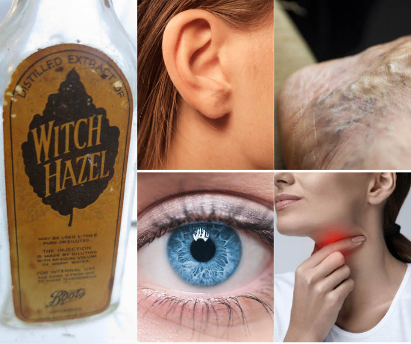 16 Awesome Uses for Witch Hazel